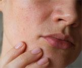 التهاب بشرة الوجه