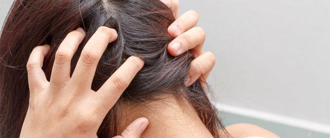 عادات وأسباب تؤدي إلى حكة الرأس: كيفية علاجها