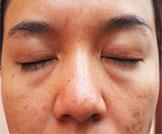 علاج انتفاخ العيون