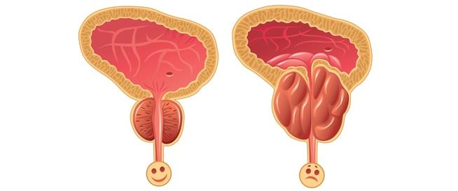 تضخم البروستاتا وأعراضه: هذا ما يجب معرفته