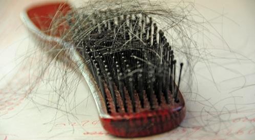 اسباب تساقط الشعر بكثرة
