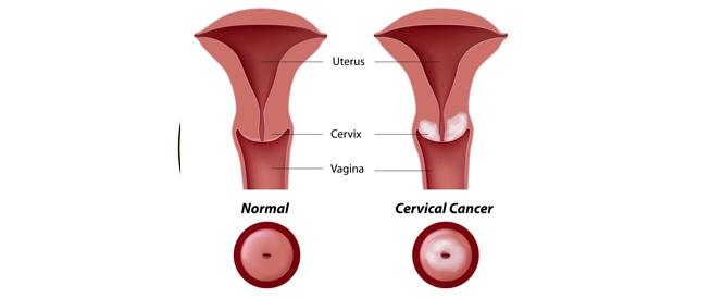 اعراض سرطان الرحم ومعلومات هامة حوله