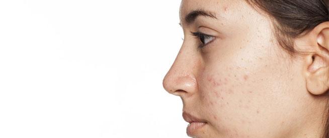 حبوب الوجه بعد الثلاثين: الأسباب المحتملة وطرق الوقاية