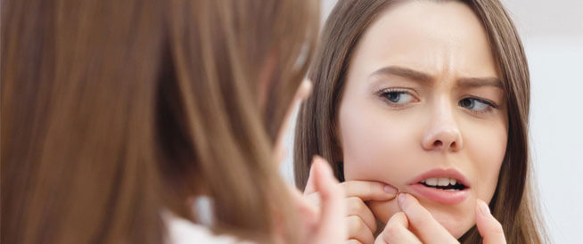 حبوب الوجه قبل الدورة الشهرية: أسبابها وطرق تفاديها
