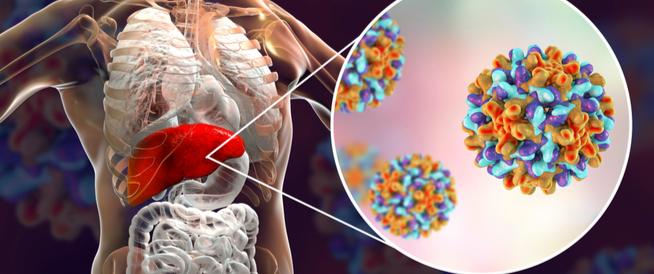 التهاب الكبد: الاعراض، الاسباب والعلاج