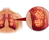 علاج سرطان الرئة وخطوات التشخيص