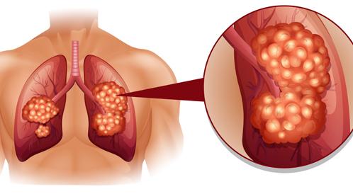 علاج سرطان الرئة