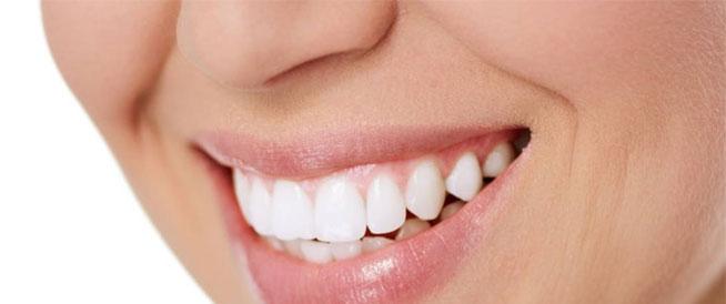 أضرار تبييض الأسنان على الصحة