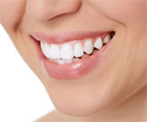 أضرار تبييض الأسنان