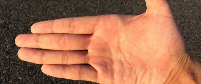جفاف الجلد: أهم الأسباب والحلول