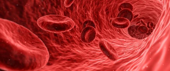اعراض زيادة الدم في الجسم ... وأسبابه!