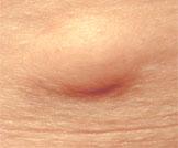 أسباب وعلاج الكيس الدهني بالبطن