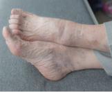 أسباب تورم القدمين عند كبار السن