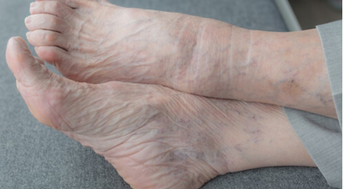 اسباب تورم القدمين عند كبار السن