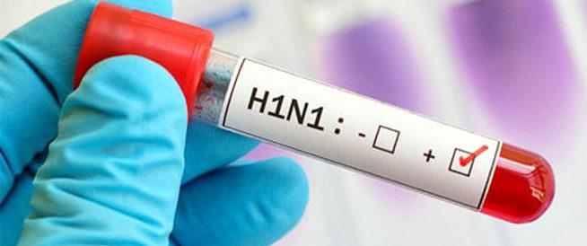 بازگشت آنفولانزای خوکی: اقدامات احتیاطی و احتیاطهای مهم