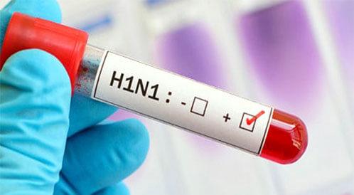 احتياطات عودة أنفلونزا الخنازير
