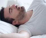 علامات قلة النوم