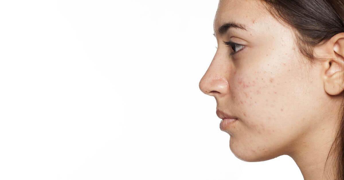 فرز شجاع اماكن اخرى علاج الحبوب الكبيرة تحت الجلد في الوجه Findlocal Drivewayrepair Com