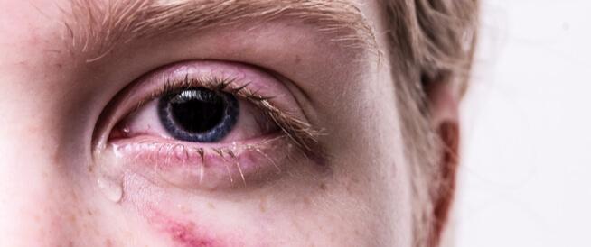 حساسية العين: أنواع عديدة وعلاجات مختلفة