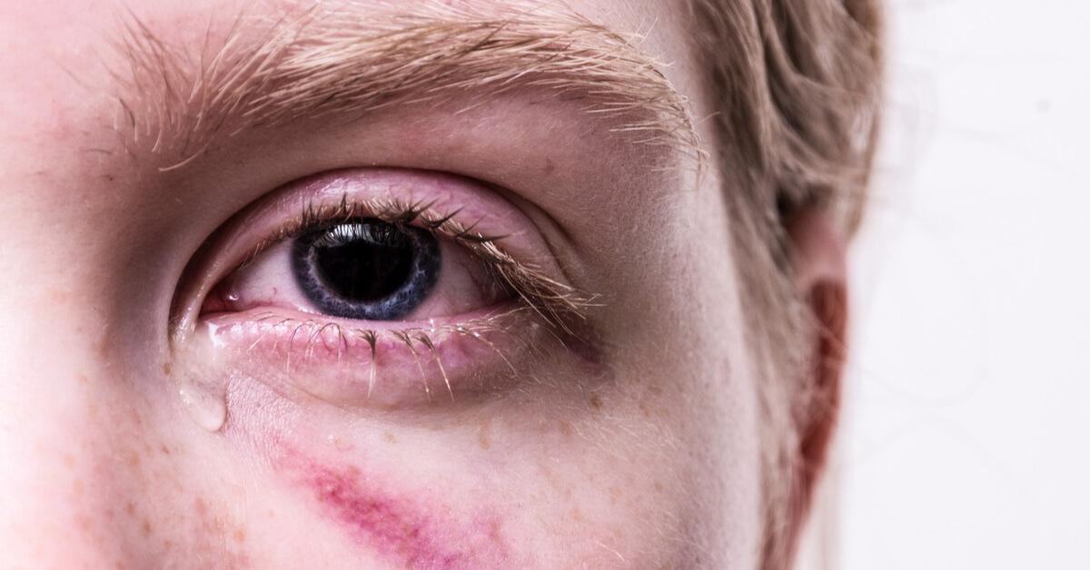 حساسية العين أنواع عديدة وعلاجات مختلفة ويب طب