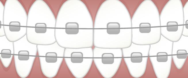 أنواع تقويم الأسنان ومعلومات أخرى هامة