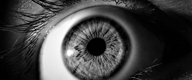 جحوظ العين: أسباب عديدة وعلاجات متنوعة