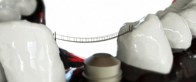 جسر الاسنان: أنواعه واستعمالاته ومعلومات أخرى!