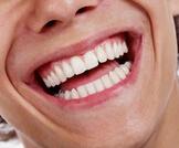 كم عدد أسنان الانسان