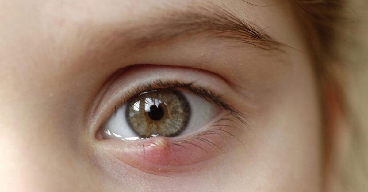 أسباب حبوب العين وطرق الوقاية منها ويب طب