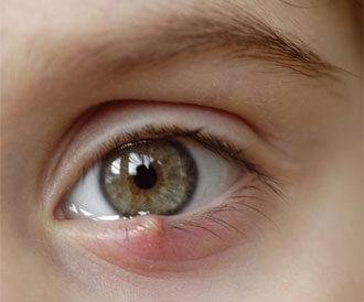 أسباب حبوب العين وطرق الوقاية منها
