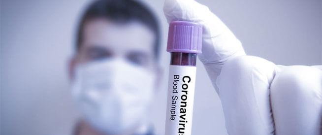 دواء هيدروكسي كلوروكوين والكورونا: كل المعلومات