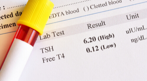 تحليل Tsh ماذا يجب أن تعرف ويب طب