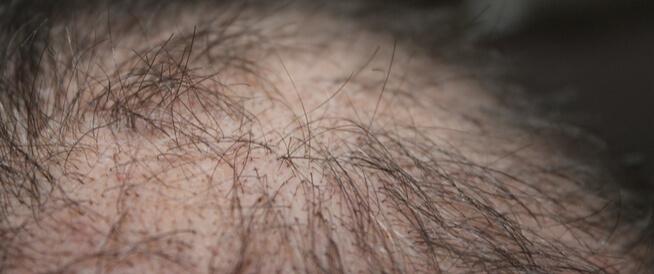 توضيح لتساقط الشعر الكربي