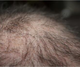 تساقط الشعر الكربي: حزن وحمى وأمور بسيطة قد تفقدك شعرك!