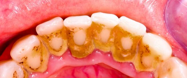 جير الأسنان: ماذا يجب أن تعرف عنه؟
