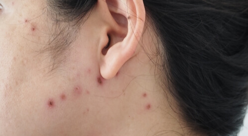 العنقز: ما هو هذا المرض؟