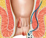 أعراض البواسير الداخلية