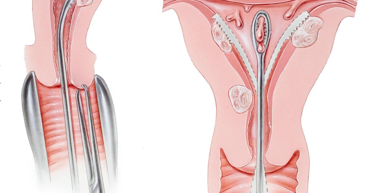 عملية تنظيف الرحم أهم المعلومات ويب طب
