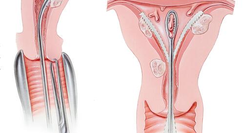 عملية تنظيف الرحم
