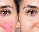 أسباب التهاب الوجه المستمر