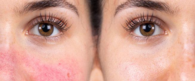 أسباب التهاب الوجه المستمر وطرق علاجه