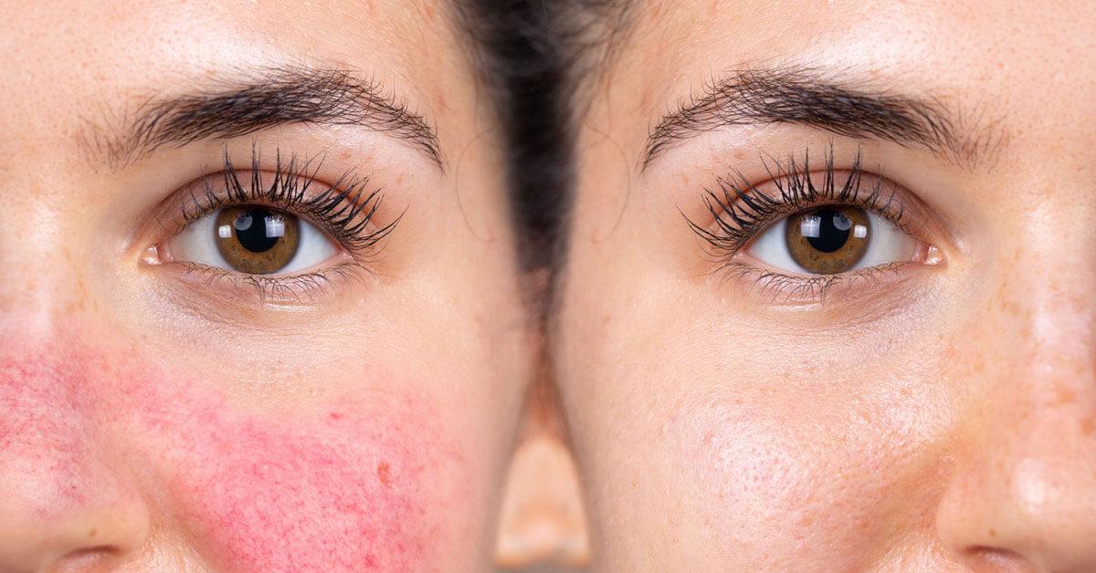 أسباب التهاب الوجه المستمر وطرق علاجه ويب طب