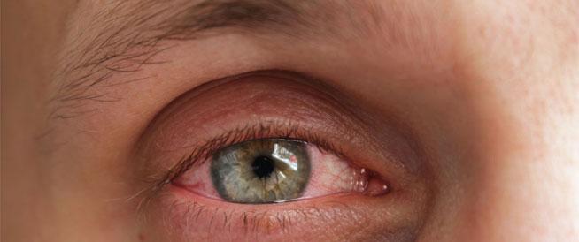 أسباب حساسية العين وطرق الوقاية منها ويب طب