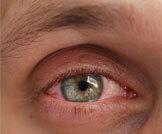 أسباب حساسية العين