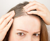 علاج الشعر الأبيض والتخلص منه طبيبعاً
