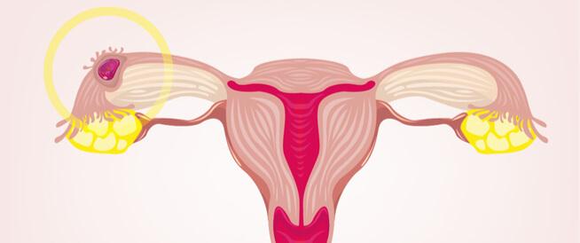 كم أسبوع يستمر الحمل خارج الرحم؟ وما هو الحمل المنتبذ؟
