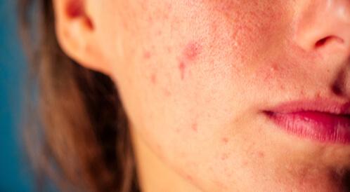 علاجات منزلية لحبوب الوجه الحمراء ويب طب