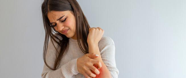 علاج الهرش الشديد: أهم الطرق الطبية والطبيعية