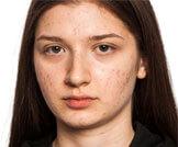 أنواع حبوب الوجه وعلاجها