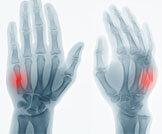 أسباب وعلاج كسور اليد